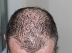 hair loss, alopecia areata