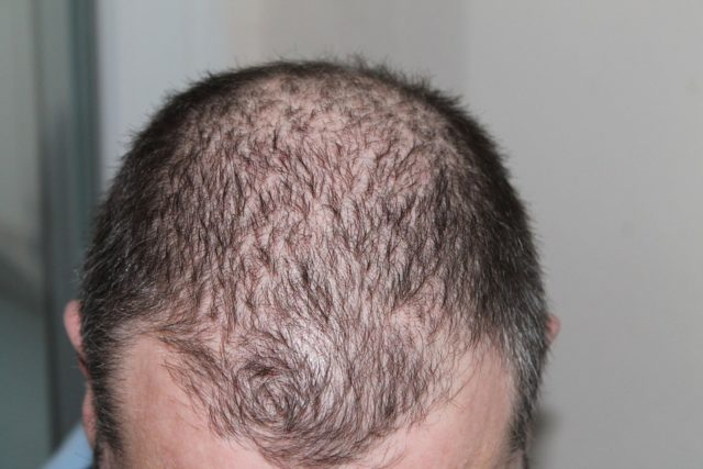 hair loss, alopecia areata
